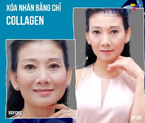 cac cong nghe lam dep tai vedette