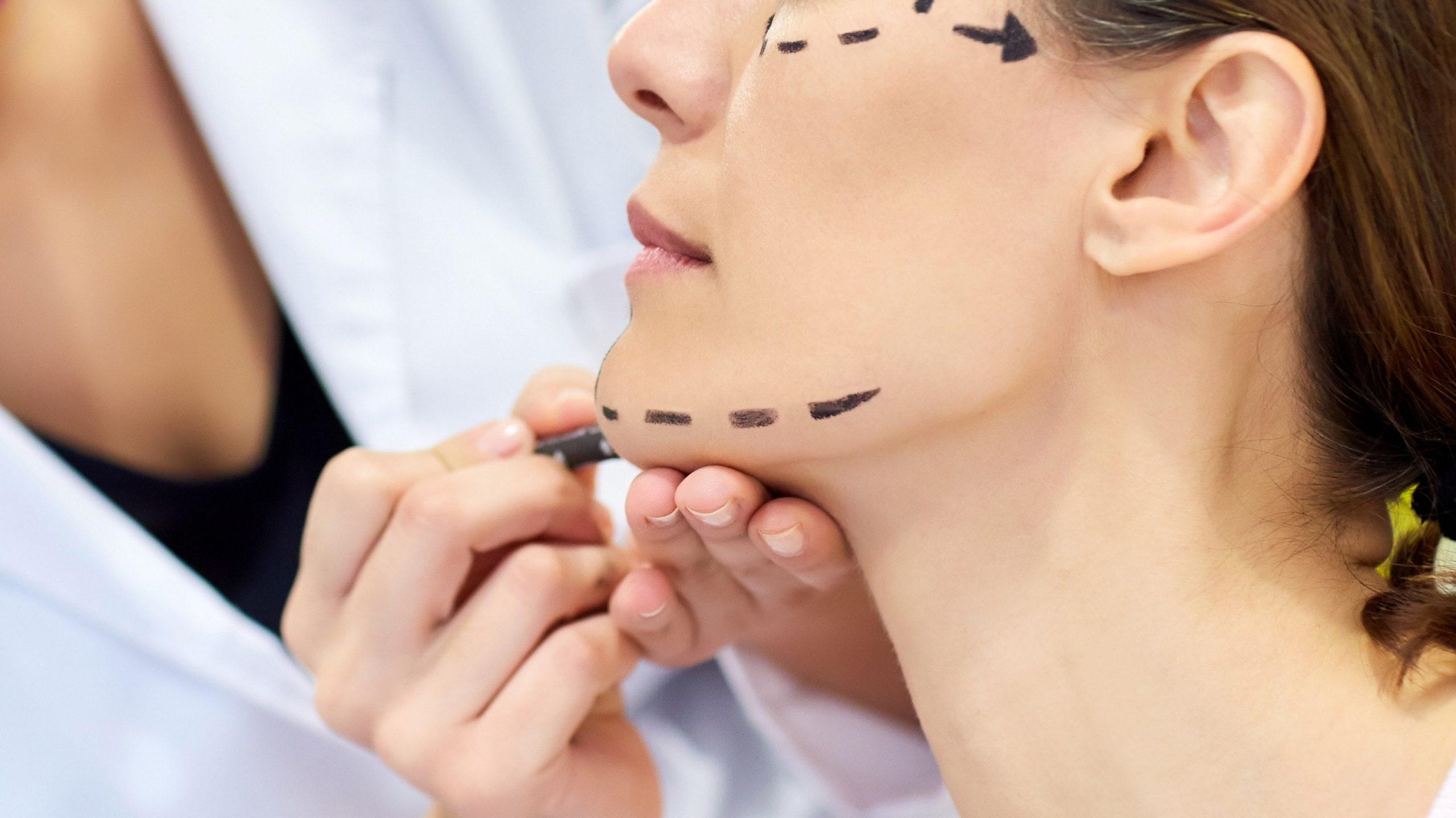 căng da mặt bằng chỉ collagen có nguy hiểm không