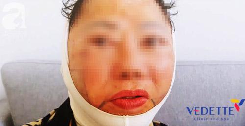 cang chi collagen co tac dung phu khong