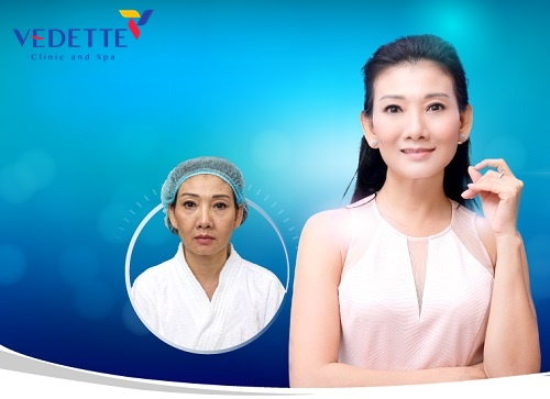 tac dung cua cang chi collagen