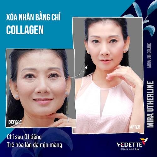 căng da mặt chỉ collagen 3D ở đâu tốt