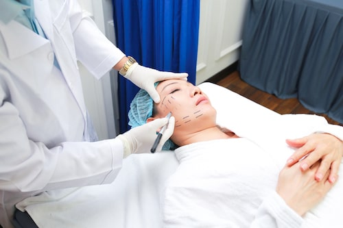 căng da mặt bao lâu hồi phục