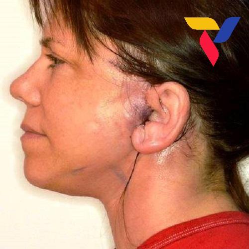 căng da mặt có tác dụng phụ gì nguy hiểm không