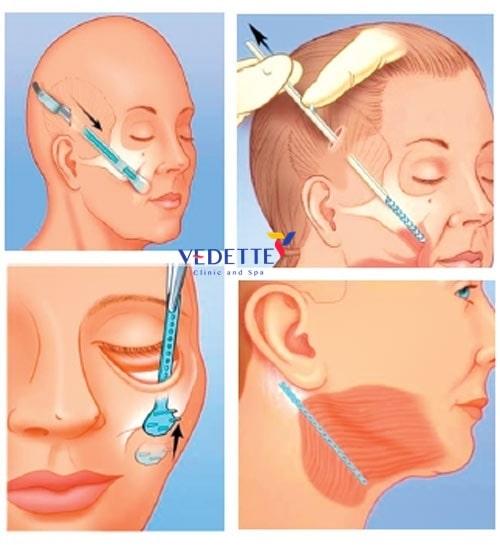 căng da mặt nội soi