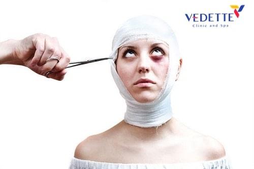 căng da mặt phẫu thuật giá bao nhiêu