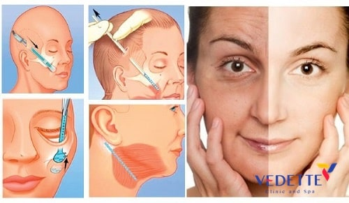 căng da mặt tiểu phẫu