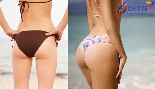 cách giảm béo mông hiệu quả trong 1 tuần