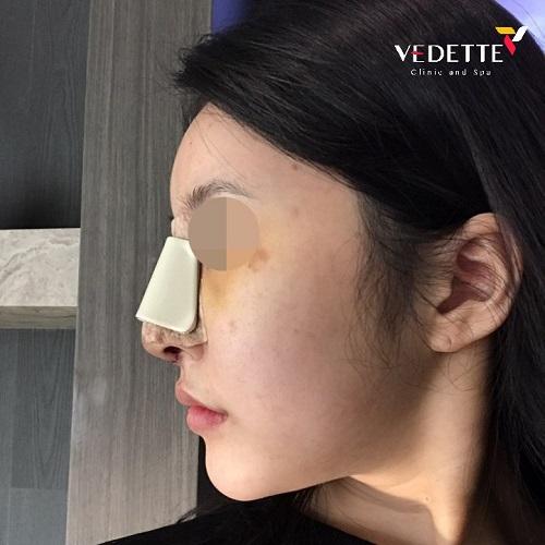 nẹp định hình sau khi tiến hành phẫu thuật nâng mũi