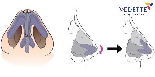 phẫu thuật nâng mũi bằng vật liệu độn( sụn) nhân tạo