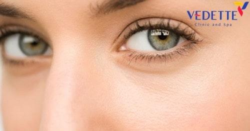 phẫu thuật tạo hình mắt hai mí