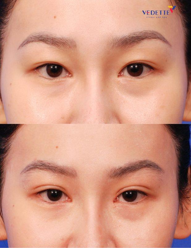 Liệu pháp cắt mắt tạo 2 mí Vedette
