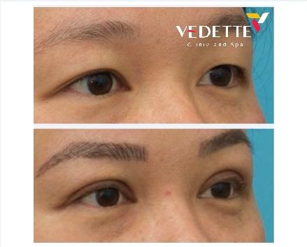 Phẫu thuật tạo mắt 2 mí Mini Deep Baby Vedette