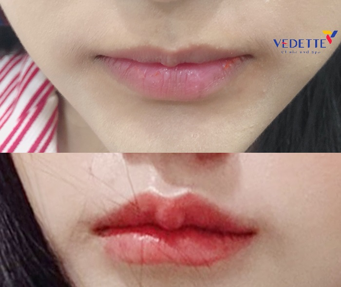 tiêm Filler môi có đau không