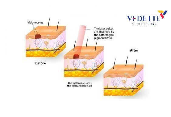 điều trị nám da bằng công nghệ Laser Plasma Ethonic