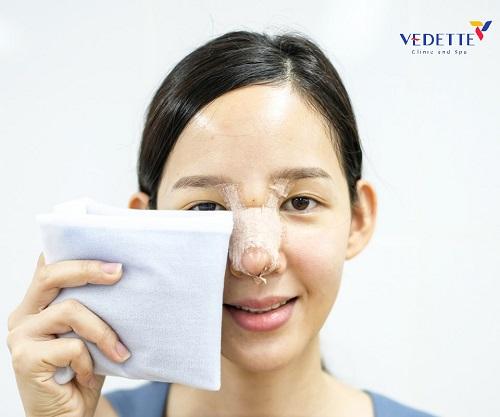 phẫu thuật nâng mũi bao lâu mới hết sưng