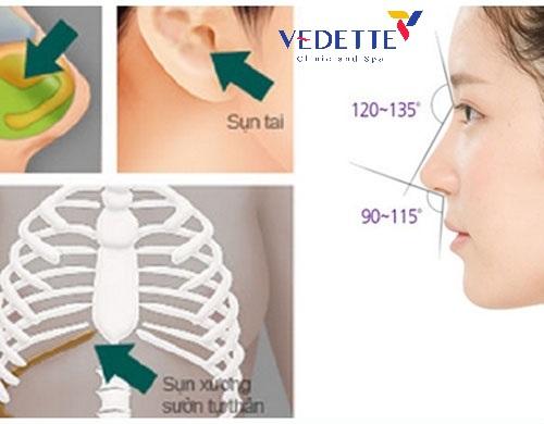 phẫu thuật nâng mũi có an toàn không