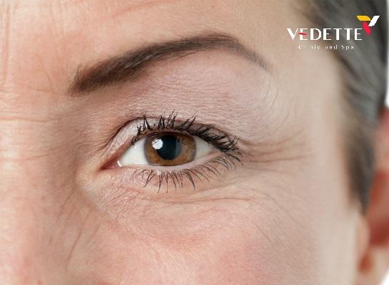 chi phí xóa nhăn vùng mắt
