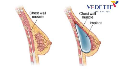 Túi ngực Motiva Nano