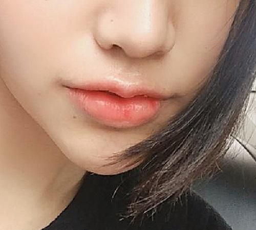 tiêm filler môi bao lâu thì ổn định