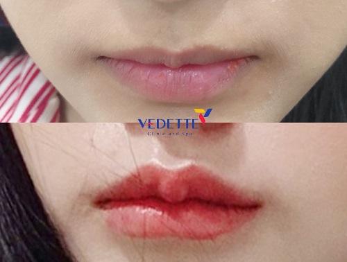 Tiêm filler môi bao lâu lành, bao lâu ổn định
