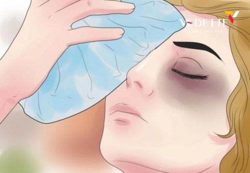 cách chăm sóc sau khi nhấn mí mắt