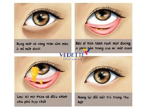 cách chăm sóc sau khi cắt mí mắt dưới