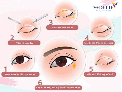 phẫu thuật cắt mí mắt lưu ý những gì