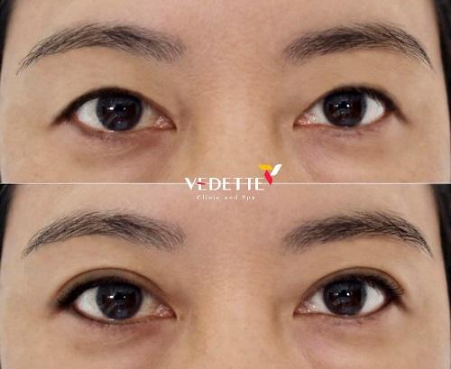 lưu ý khi phẫu thuật cắt mí mắt
