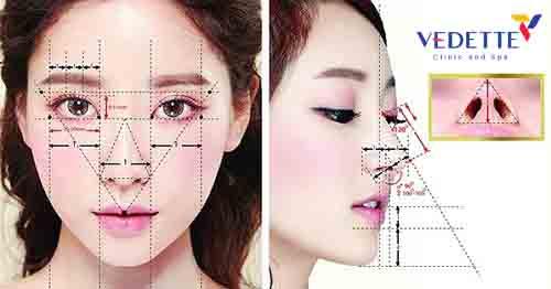 Nâng mũi cấu trúc là gì