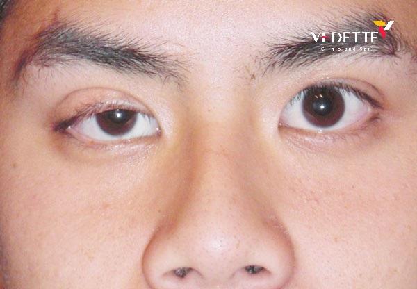 mí mắt bị lệch không đều