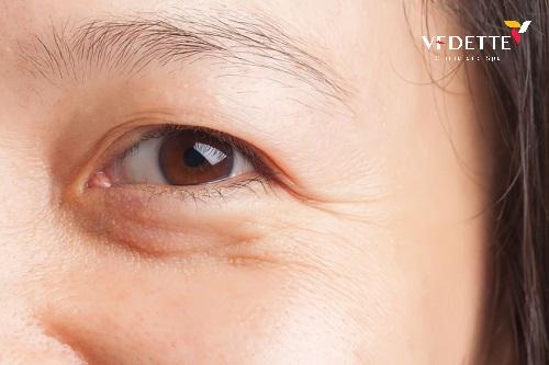 công nghệ trẻ hóa da vùng mắt an toàn hiệu quả